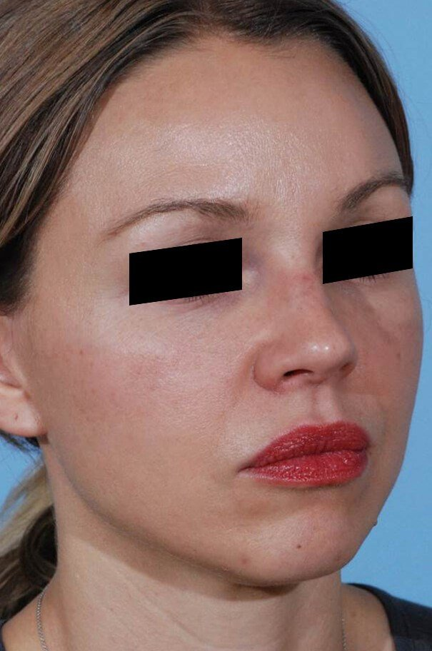 Before and After Facelift & Brow Lift Photos