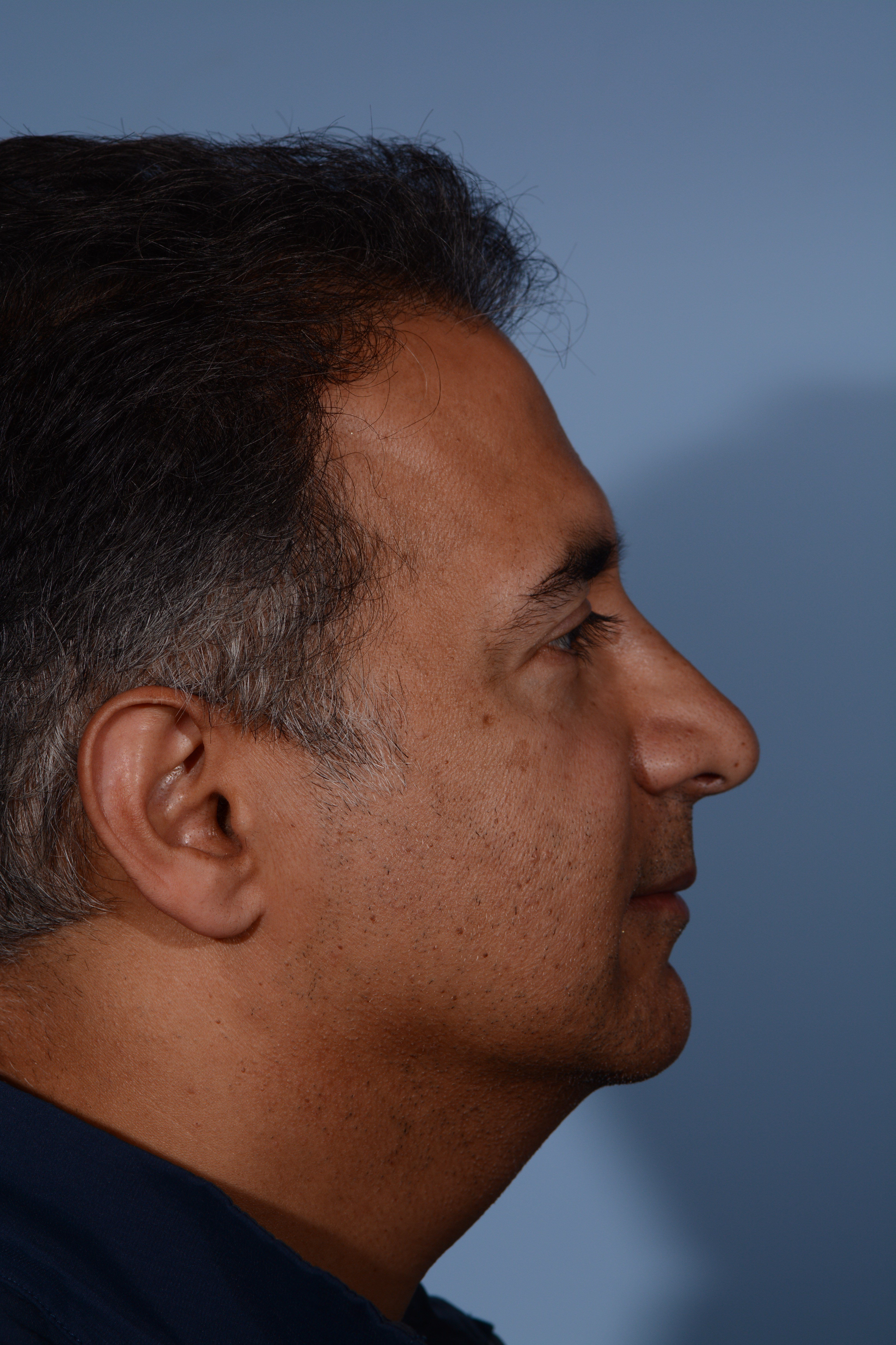 Rhinoplasty Before & After After