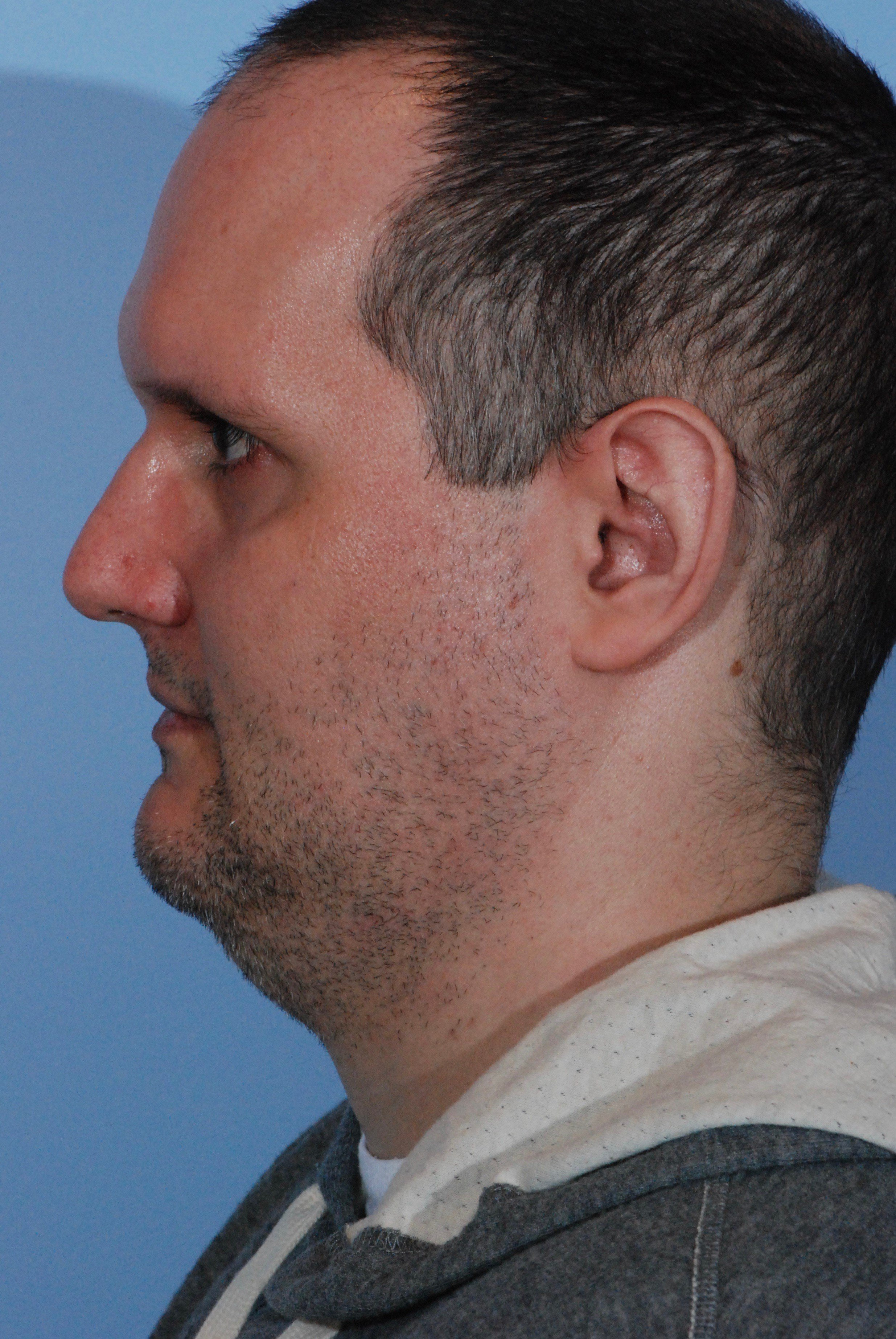 Male Neck Liposuction Before